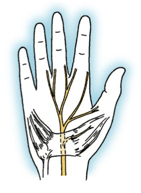 Carpal Tunnel Syndrome Figure 1